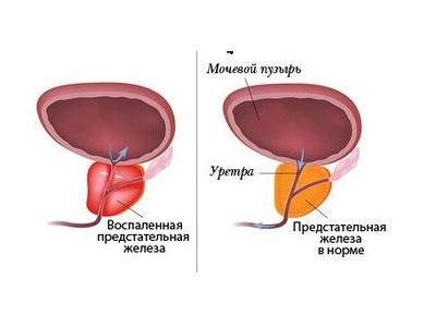 Vidutinis lytiniu organu nariu dydis is visu saliu