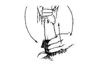 Vyriskos formos nariai ir nuotrauka Penio dydzio ziedo pirstu