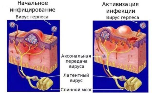 Liaudies gynimo priemones padidina lytini organa Kas yra normalus nario dydis 21 metu